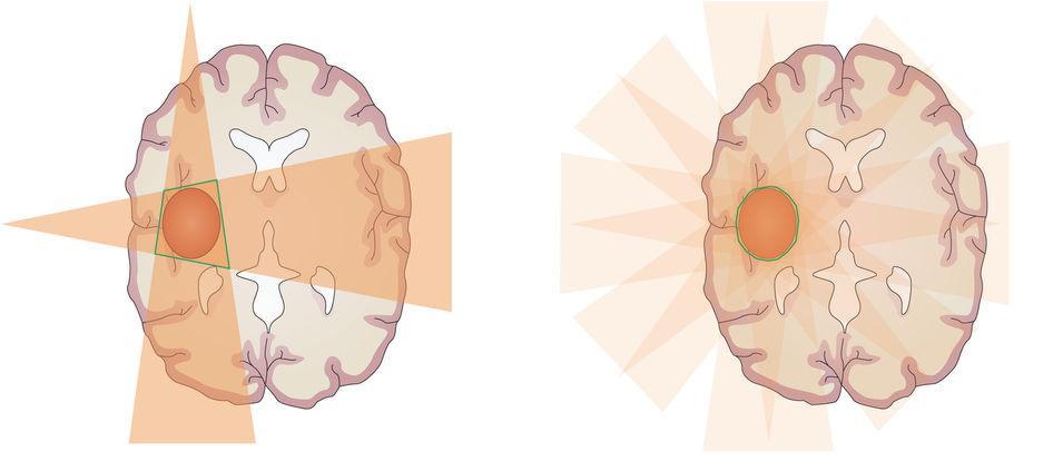 Слева - конвенциональная лучевая терапия (3D-CRT) - зона высокой дозы излучения (зеленый контур) сформирована на пересечении двух полей, она превышает объем расположения опухоли, что ведет к повреждению здоровых тканей, как в зоне пересечения, так и в зоне прохождения двух полей высокой дозы.
