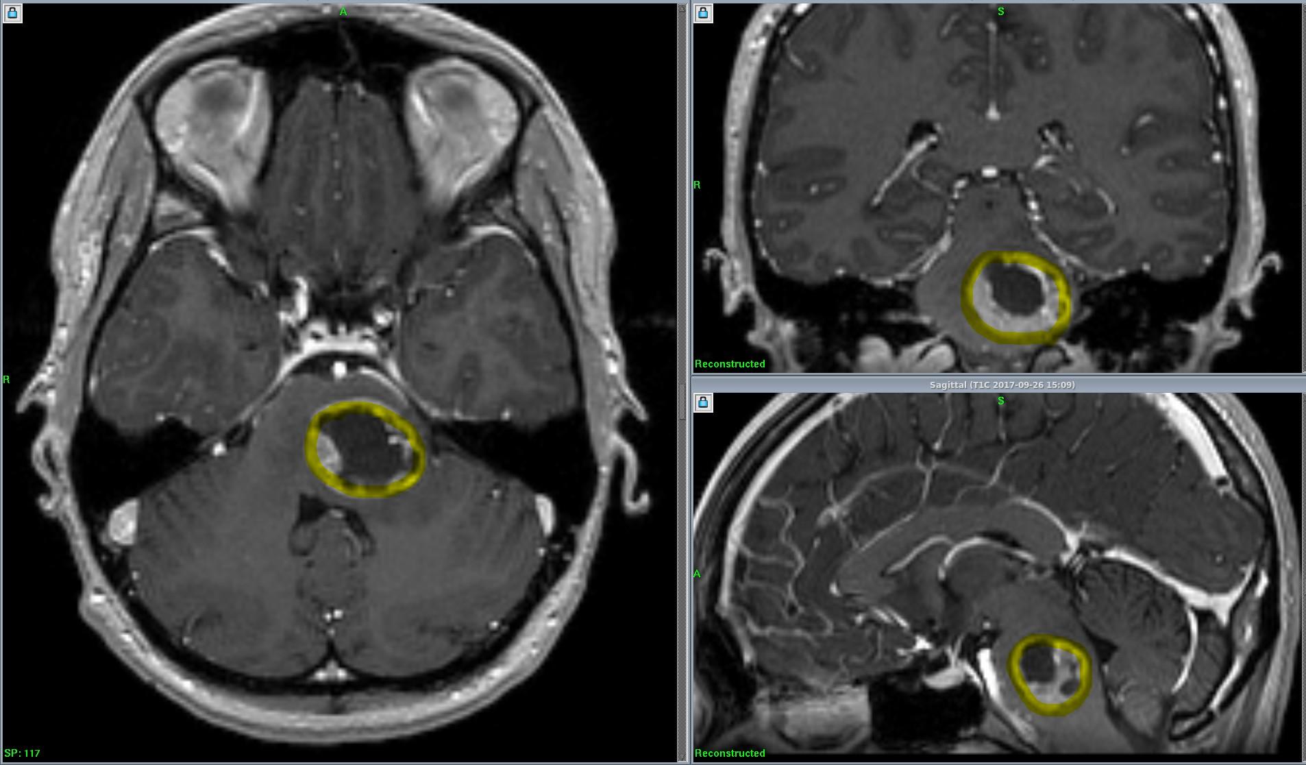 Так выглядит метастаз в головной мозг (расположен в стволе головного мозга, выделен желтым контуром), выявленный при МРТ с контрастированием