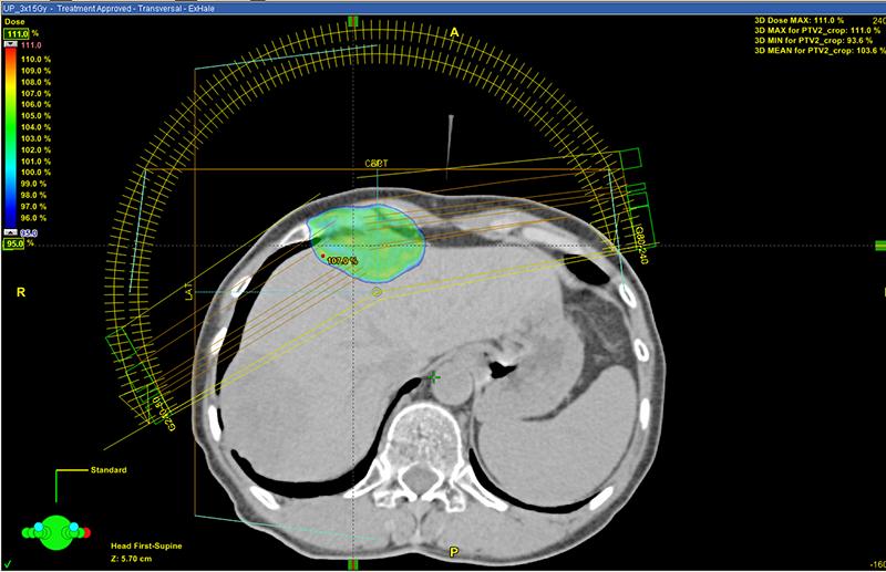 Высокая точность лечения метастазов в печень на линейном ускорителе TrueBeam STx: на плане лечения представлен предварительный расчет, который показывает, что высокую дозу получит только зона внутри синего контура, отвечающая по своей пространственной форме контуру метастаза в печени. Задача врачей задать контуры здоровых и пораженных тканей, а количество, формы и траекторию, по которым суперсовременный медицинский роботизированный комплекс подаст поля облучения, рассчитает мощнейший программный комплекс. Но контроль все равно за человеком – каждый план лечения утверждают медицинский физик и лучевой терапевт