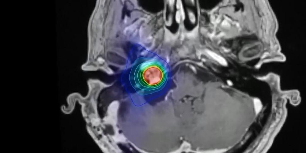Метастазы в голове