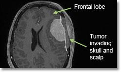 Менингиомы фронтальной доли. Локализация - конвекситально (на поверхности головного, мозга вдали от срединной линии)